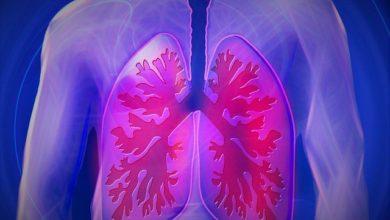 Photo of Tumore ai polmoni, scoperte le cause per i non fumatori